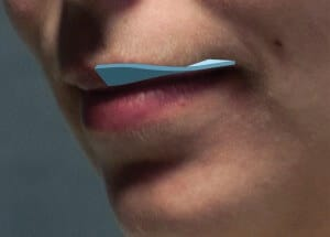 """An illustration of the """"twisting"""" orientation of the upper lip toward the corners of the mouth."""
