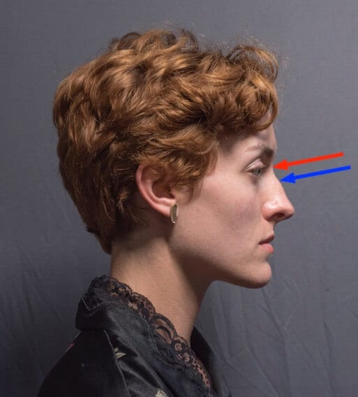 The root of the nose is marked here in red, the bridge of the nose terminates lower, at the end of the nasal bones, marked here in blue.
