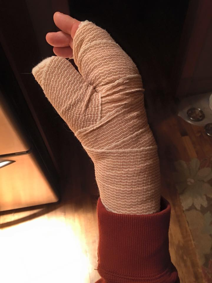 My right hand bandaged after returning from the ER.